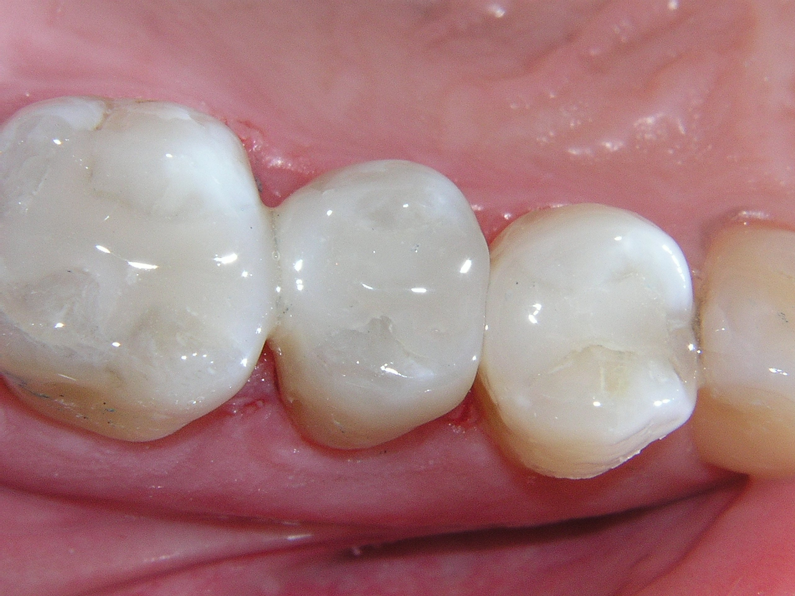 Composite Resins (White Fillings)